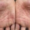 手湿疹?水虫?アトピー? 掌蹠膿疱症の症状とわ?
